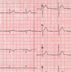 electrocardiogram-london